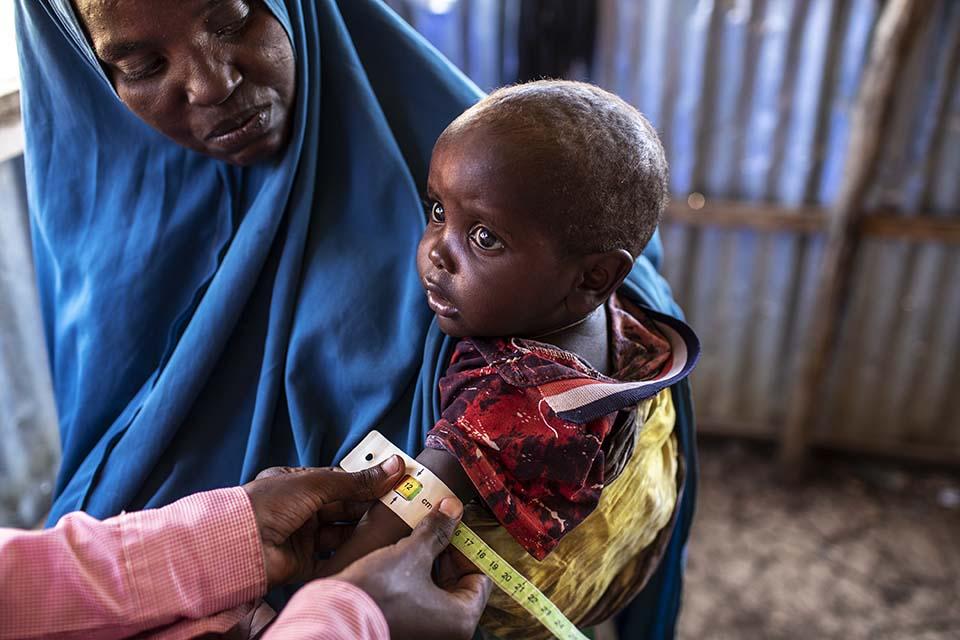 Somalia child nutrition exam